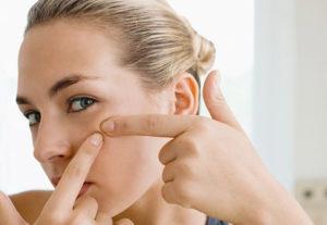 Как избавиться от следов прыщей на лице в домашних условиях