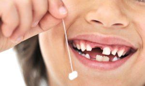 К чему снится выпадение зубов без крови у себя