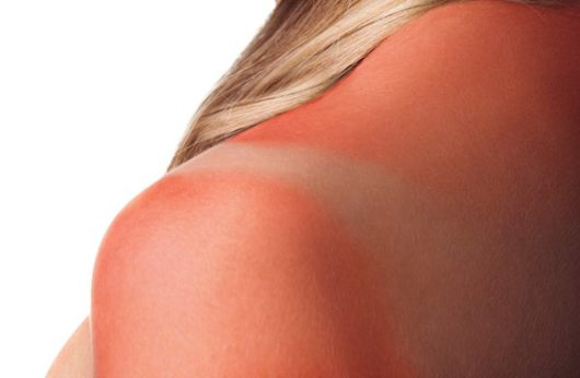 Что нельзя делать при солнечных ожогах
