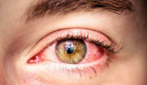 Почему лопаются сосуды в глазах - что делать