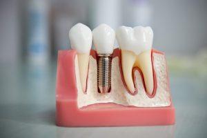 Все или почти все, что необходимо знать об имплантации зубов